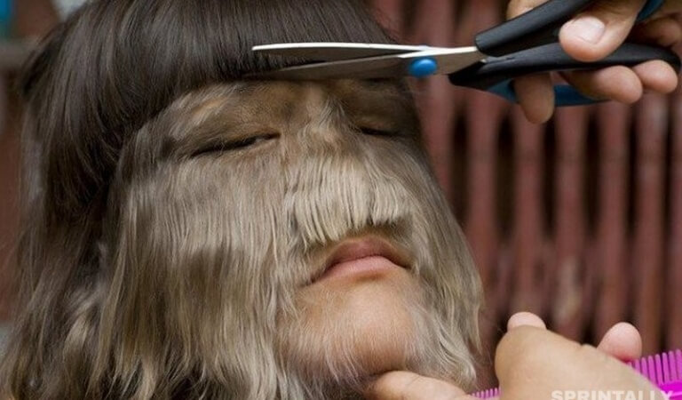 The most hairy girl in the world married in Thailand