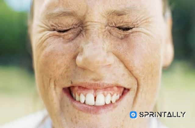 80 Percent Of Wrinkles A Woman Gets From That Allows Your Face To The Sun